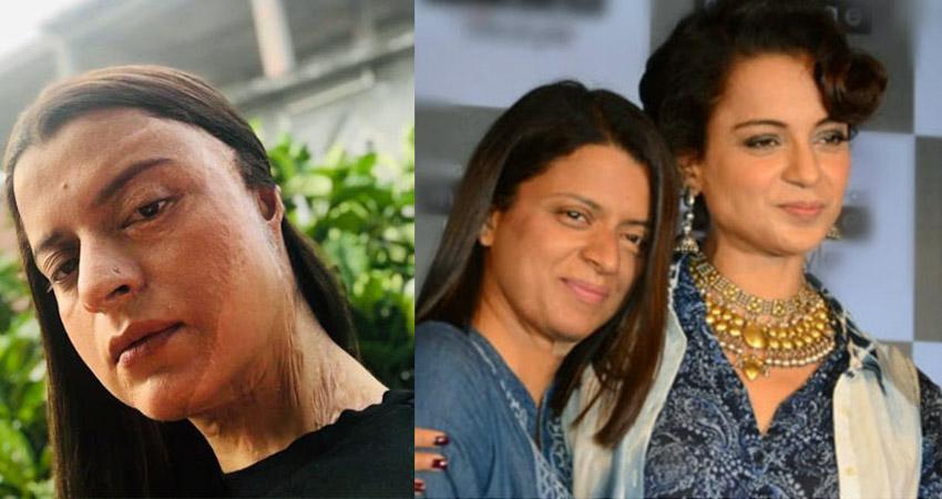 एसिड अटैक के बाद जब टूटी थी Kangana की बहन की शादी, योग से ठीक हुई थी रंगोली