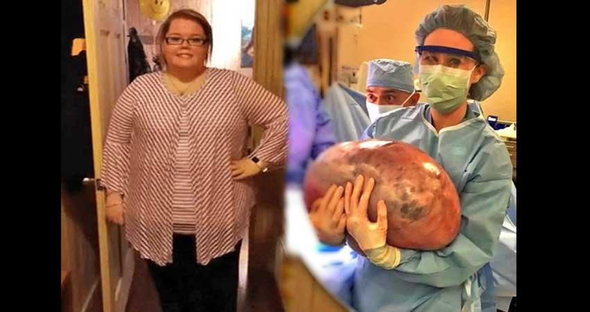 महिला के पेट से निकाला 22.50 किलो का ट्यूमर, डॉक्टरों को ऐसे मिली सफलता