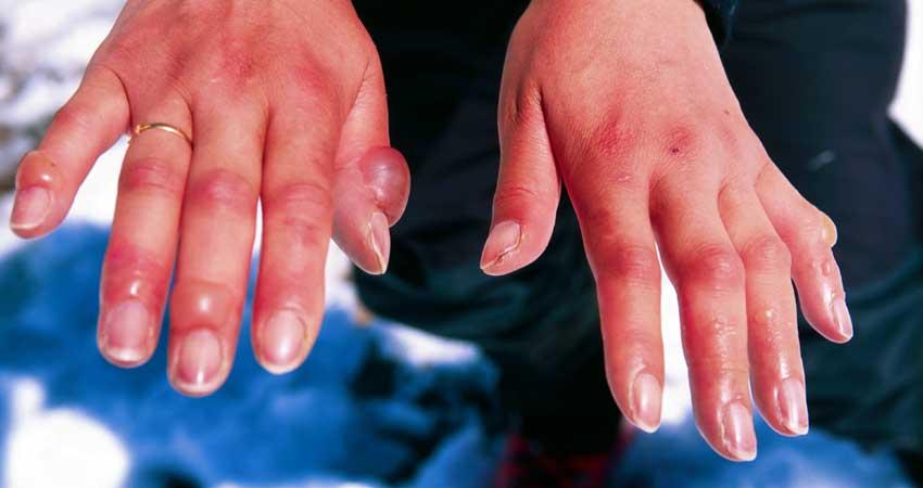 सर्दियों में चिलब्लेन यानी हाथ पैरों की सूजन से परेशान रहते हैं तो घर पर करें इलाज