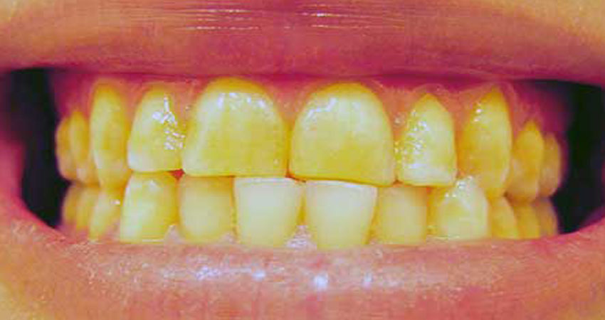 दांतों का पीलापन नहीं हो रहा है दूर तो इन 5 तरीकों से करें इसका घरेलू इलाज