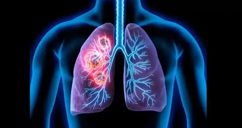 अगर दिख रहे ये लक्षण तो आप हो सकते हैं Lung Cancer के शिकार, ऐसे करें बचाव