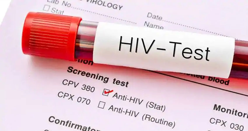 HIV के संक्रमण से हो सकता है हृदयगति रुकने और दिल का दौरा पड़ने का ज्यादा खतरा
