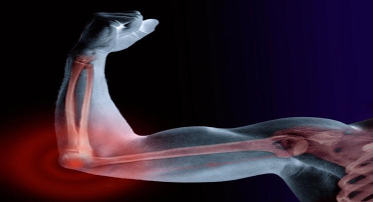 Image result for हड्डियों में मजबूती